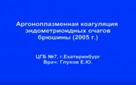 Аргоноплазменная коагуляция эндометриоидных очагов брюшины 2005 г