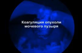 Коагуляция опухоли мочевого пузыря