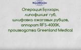 Операция Булхорн и иссечение рубцов на радиоволновом аппарате Greenland Medical