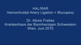 Операция HAL-RAR с использованием FlexiProbe