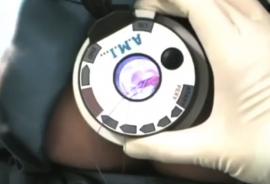 Операция HAL-RAR, традиционная техника исполнения
