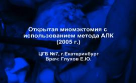 Открытая миомэктомия с использованием аргоноплазменной коагуляции 2005 г