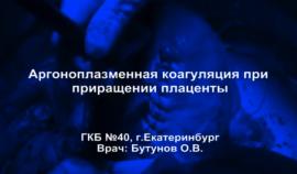 Плацента Акрета