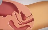 Радиоволновой RF лифтинг влагалища эффективная процедура омоложения в гинекологии
