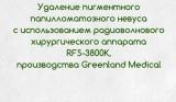 Удаление невуса на радиоволновом аппарате Greenland Medical RFS 3800K
