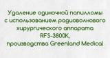 Удаление папиллом на радиоволновом аппарате Greenland Medical RFS 3800K