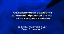 Ультразвуковая обработка флегмоны передней брюшной стенки после кесарева сечения