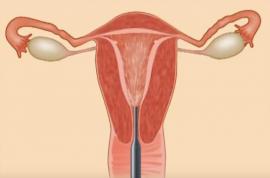 Ультразвуковая обработка полости матки